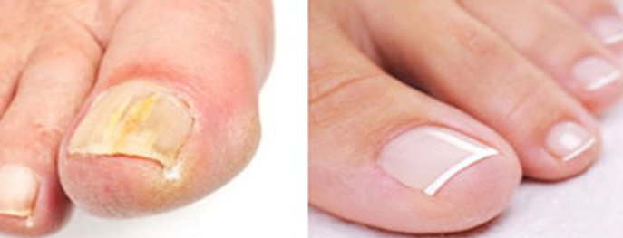 Nail Fungus Before and After Zetaclear
