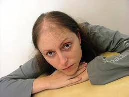 Provillus Cures Hair Loss Problem fast